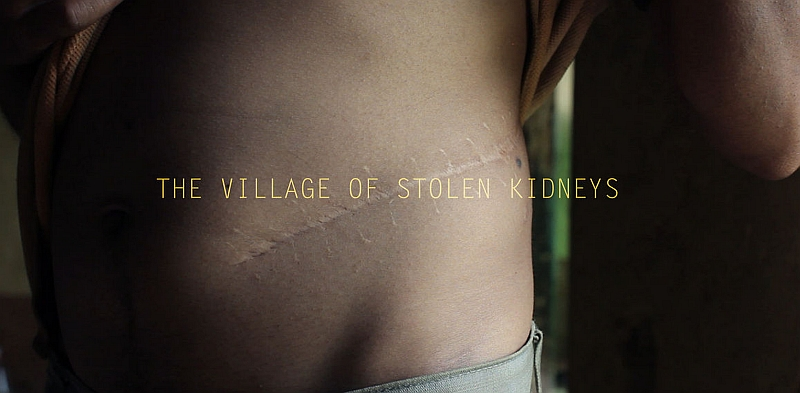 the-village-of-stolen-kidneys